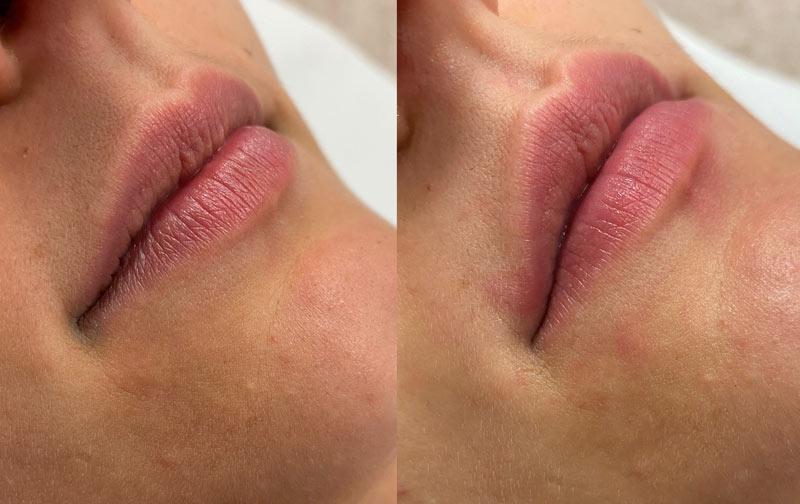 plump-lips-avant-apres-1-seance
